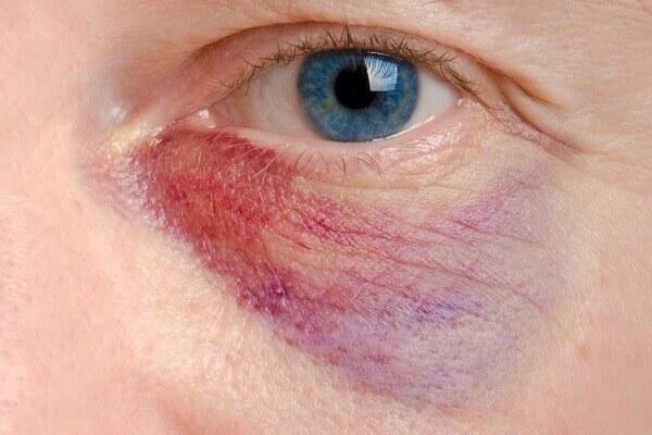 facial injury in nursing home abuse case